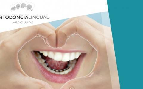 ortodoncia lingual (1)