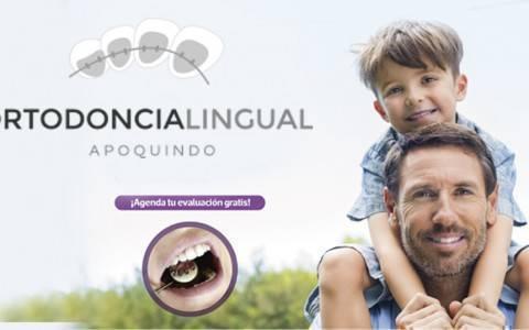banner ortodoncia lingual