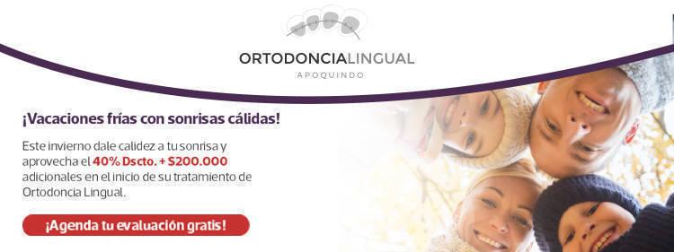 SLIDER ORTODONCIA LINGUAL